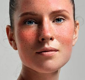 laser treatment for Rosacea in toronto