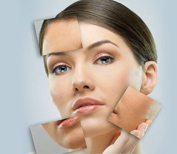 Scar Removal Archives fairview laser toronto