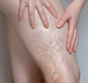 laser treatment for spider Veins in toronto