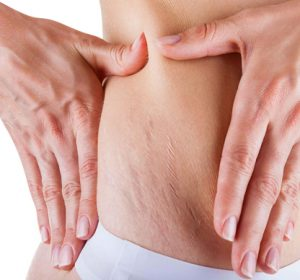 Stretch marks removal treatment toronto