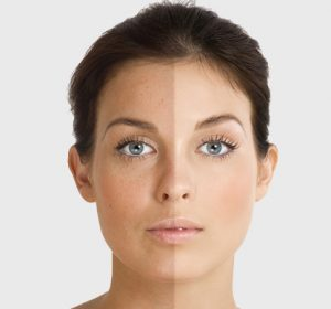 laser treatment for sun damage toronto