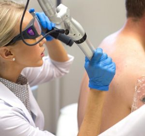 Tattoo Removal treatment Toronto